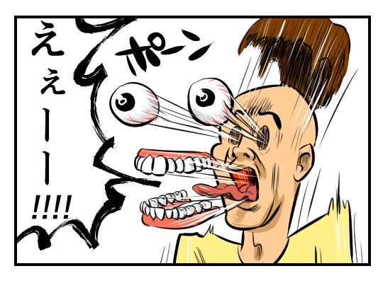 【4コマ漫画】驚きの代償